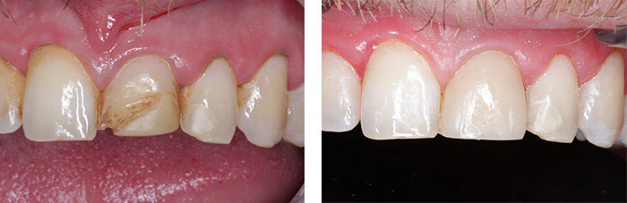 Porcelain veneer treatment