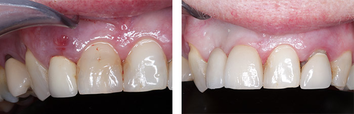 Split tooth that required extraction, replaced with a bridge.