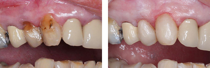 Abrasion cavities treated with composite fillings
