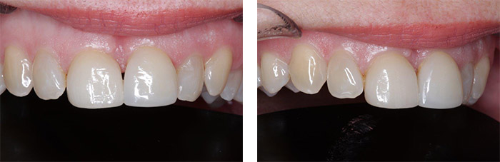 Porcelain veneer on central incisor tooth